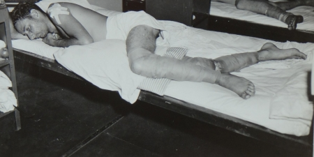Clarence E. McElroy, S1c USNR (badly burned legs), survivor of the USS Indianapolis in Naval Base Hospital No. 20, Peleliu, 5 August 1945.