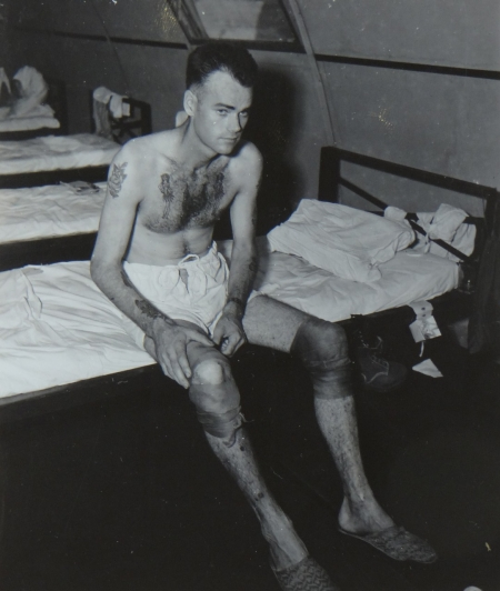 Robert L. Griffith, S1c USN, survivor of the USS Indianapolis in Naval Base Hospital No. 20, Peleliu, 5 August 1945.