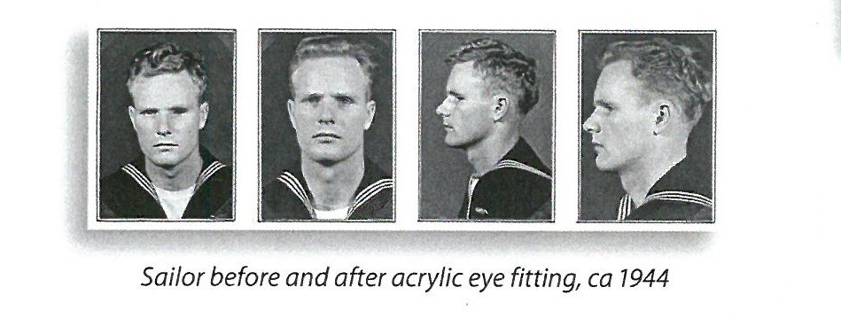 jpeg photo showing four views of a sailor before and after acrylic eye fitting, ca 1944